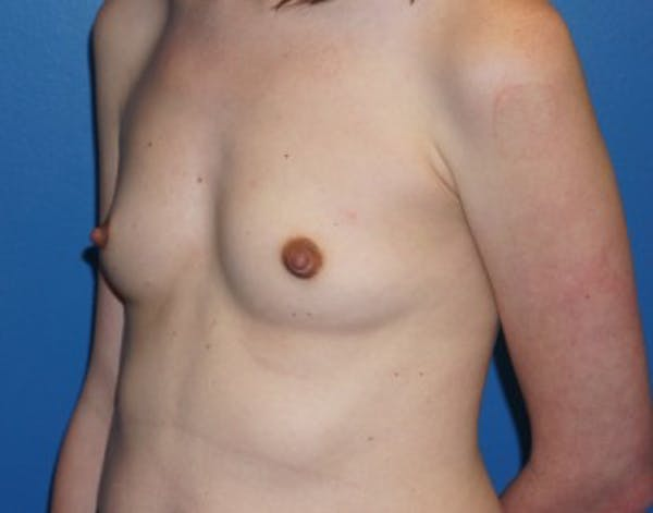 Breast Augmentation Gallery - Patient 5227292 - Image 3