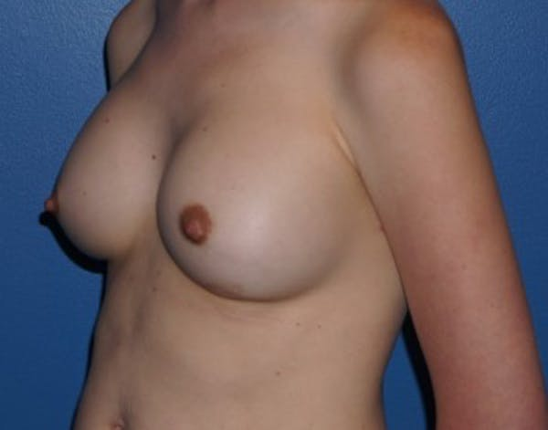 Breast Augmentation Gallery - Patient 5227292 - Image 4