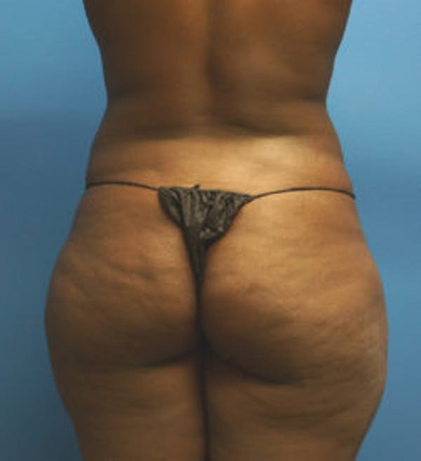 Brazilian Butt Lift Gallery - Patient 5226635 - Image 1