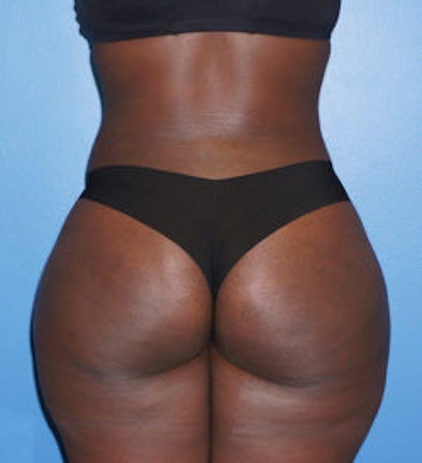 Brazilian Butt Lift Gallery - Patient 5226635 - Image 2