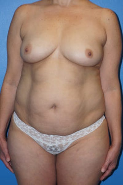 Mommy Makeover Gallery - Patient 5227351 - Image 4