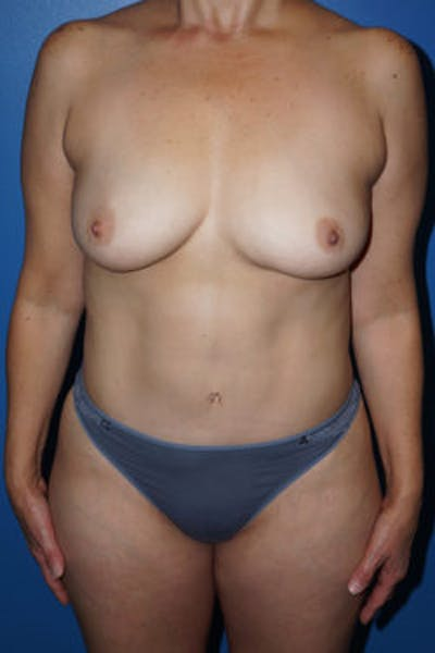 Mommy Makeover Gallery - Patient 5227351 - Image 2