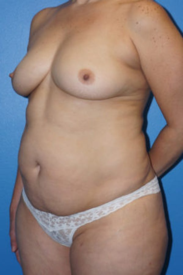 Mommy Makeover Gallery - Patient 5227351 - Image 3