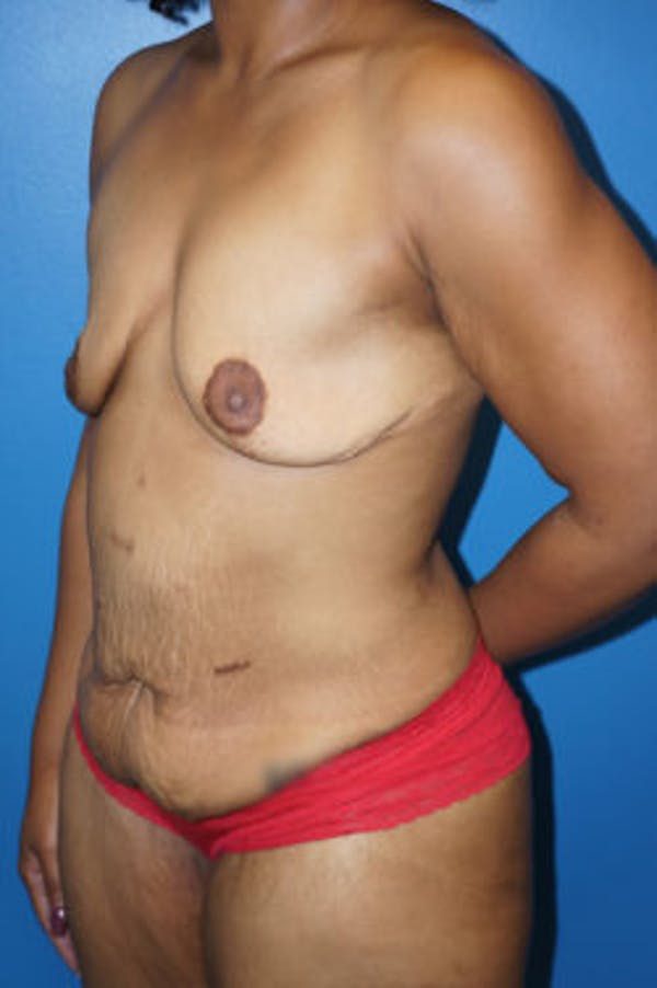 Mommy Makeover Gallery - Patient 5227352 - Image 1