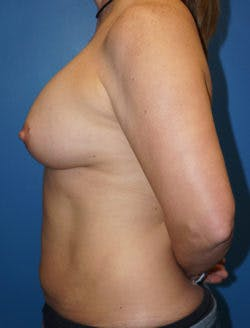 Mommy Makeover Gallery - Patient 5227353 - Image 2