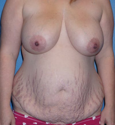 Mommy Makeover Gallery - Patient 5227355 - Image 1
