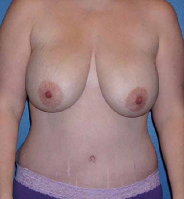 Mommy Makeover Gallery - Patient 5227355 - Image 2