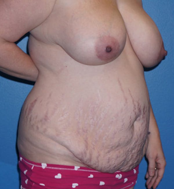 Mommy Makeover Gallery - Patient 5227355 - Image 3
