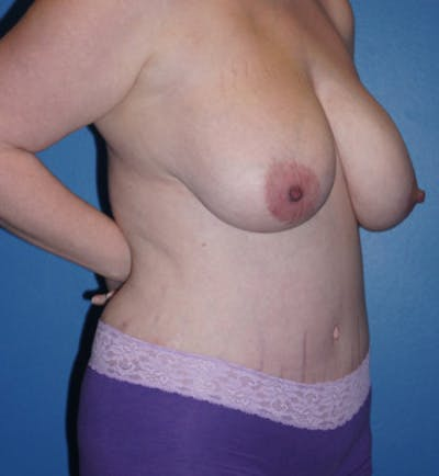 Mommy Makeover Gallery - Patient 5227355 - Image 4