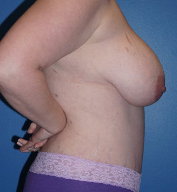 Mommy Makeover Gallery - Patient 5227355 - Image 6