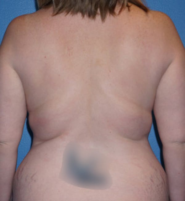 Mommy Makeover Gallery - Patient 5227355 - Image 7