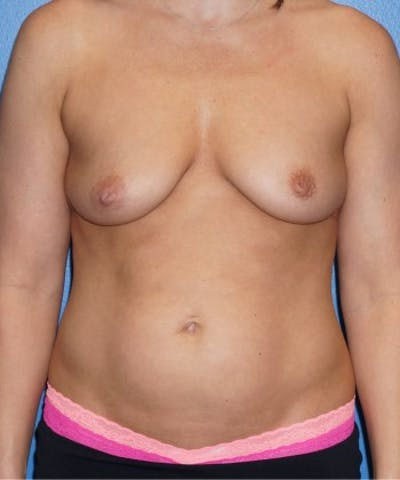 Mommy Makeover Gallery - Patient 5227356 - Image 9
