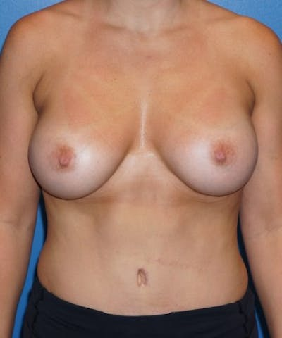 Mommy Makeover Gallery - Patient 5227356 - Image 2