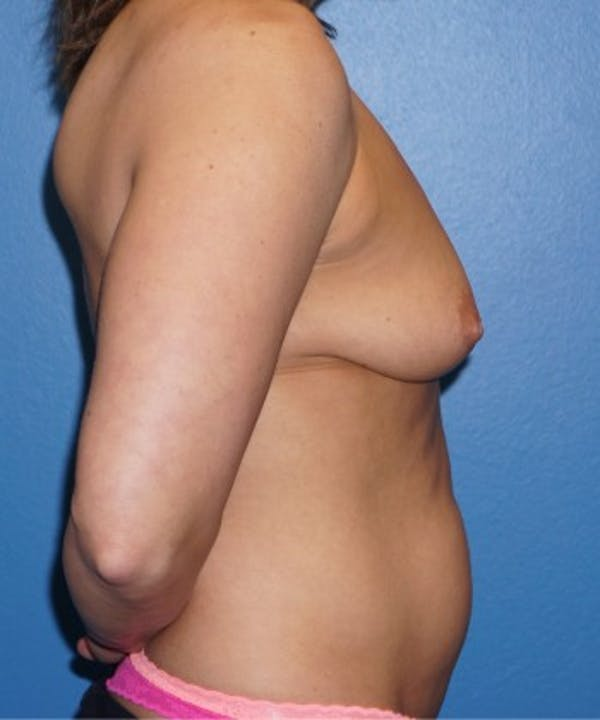 Mommy Makeover Gallery - Patient 5227356 - Image 3