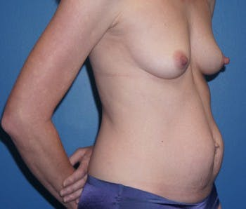 Mommy Makeover Gallery - Patient 5227357 - Image 1