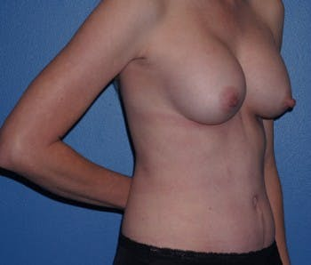 Mommy Makeover Gallery - Patient 5227357 - Image 2