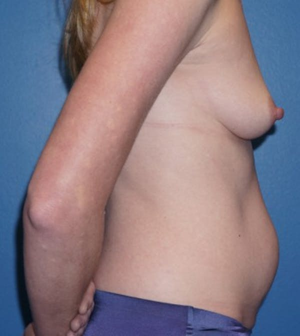 Mommy Makeover Gallery - Patient 5227357 - Image 3