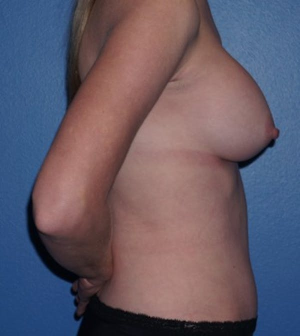 Mommy Makeover Gallery - Patient 5227357 - Image 4