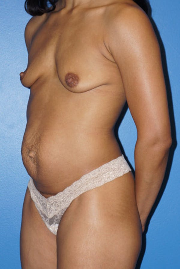 Mommy Makeover Gallery - Patient 5227358 - Image 1