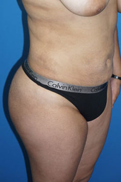 Liposuction Gallery - Patient 5227127 - Image 2