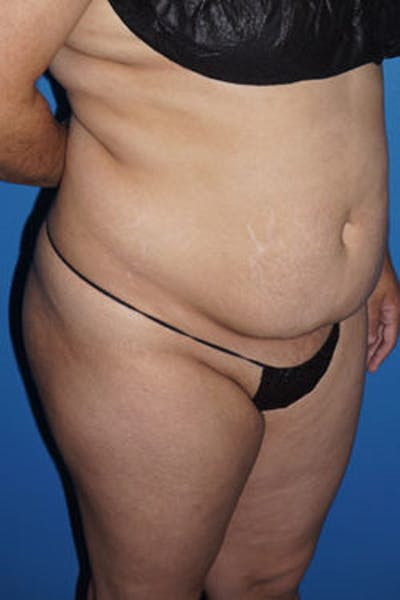 Liposuction Gallery - Patient 5227127 - Image 11