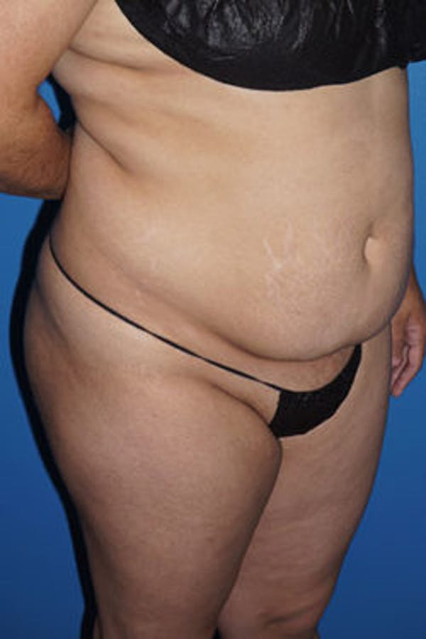 Liposuction Gallery - Patient 5227127 - Image 1
