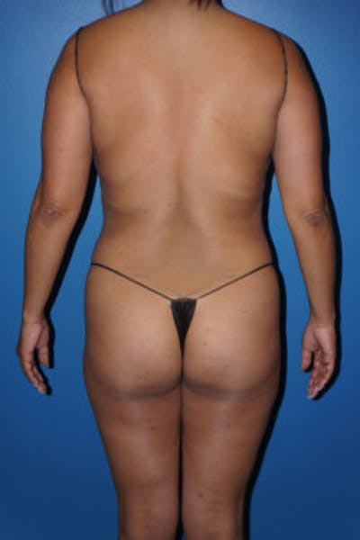 Liposuction Gallery - Patient 5227125 - Image 12