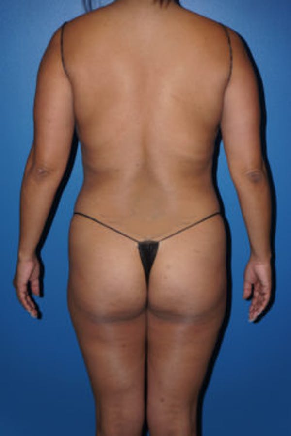 Liposuction Gallery - Patient 5227125 - Image 1