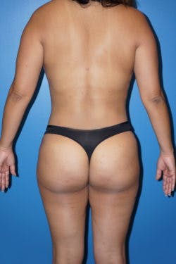 Liposuction Gallery - Patient 5227125 - Image 2