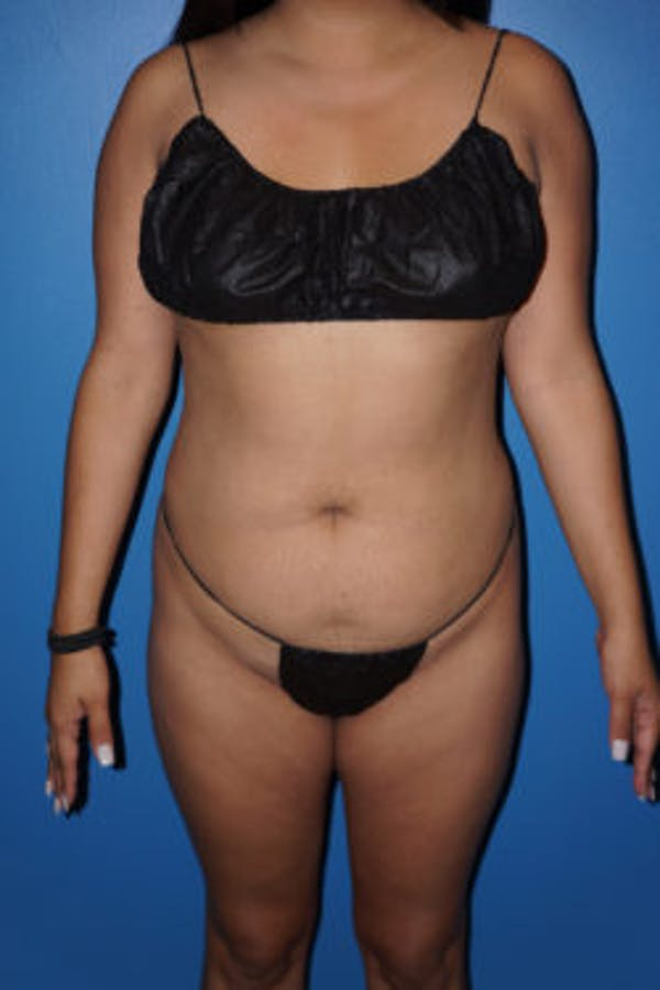 Liposuction Gallery - Patient 5227125 - Image 3