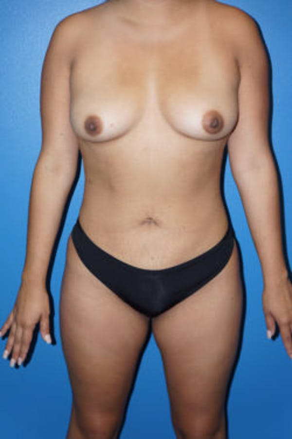 Liposuction Gallery - Patient 5227125 - Image 4