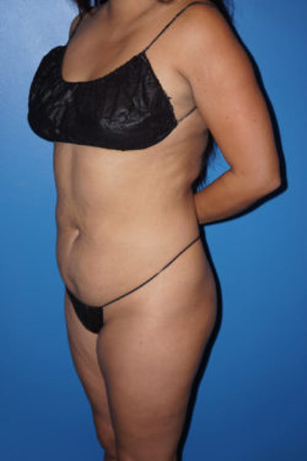 Liposuction Gallery - Patient 5227125 - Image 5