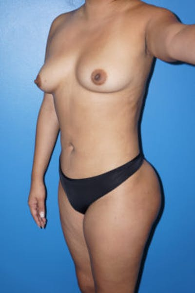 Liposuction Gallery - Patient 5227125 - Image 6
