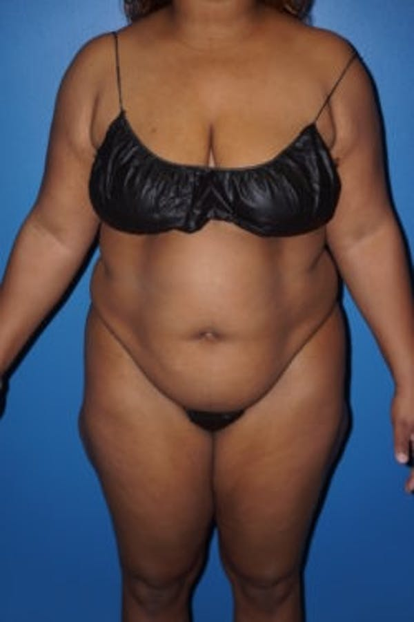 Liposuction Gallery - Patient 5227137 - Image 1