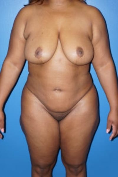 Liposuction Gallery - Patient 5227137 - Image 2