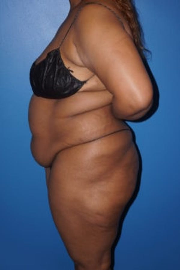 Liposuction Gallery - Patient 5227137 - Image 3