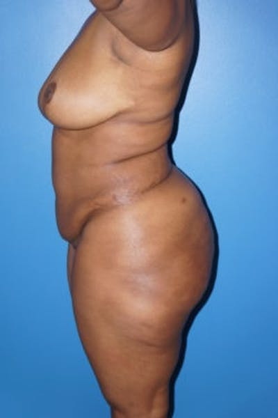 Liposuction Gallery - Patient 5227137 - Image 4