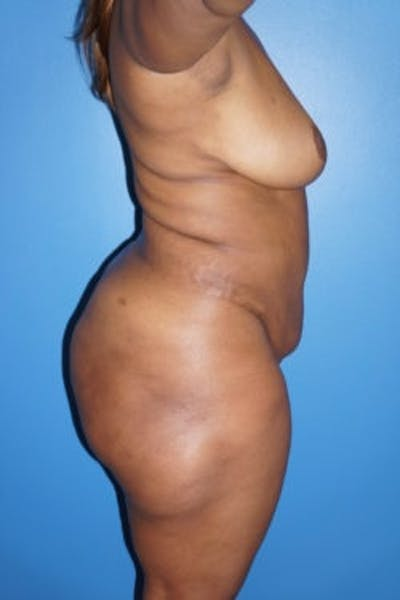 Liposuction Gallery - Patient 5227137 - Image 6
