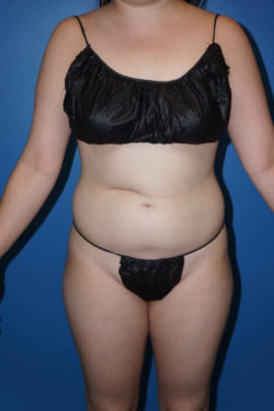 Liposuction Gallery - Patient 5227130 - Image 1