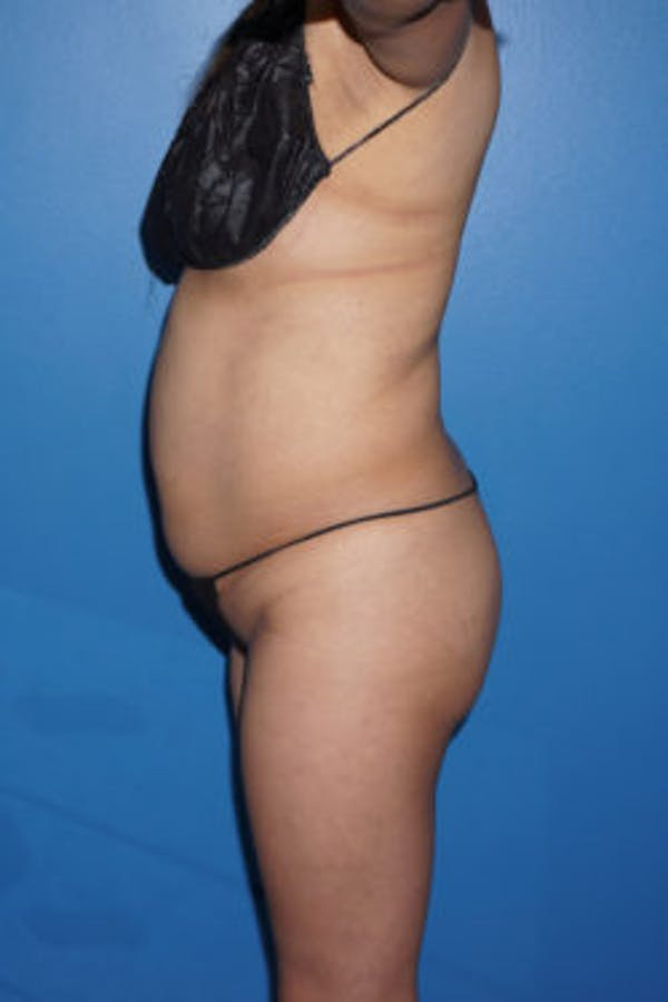 Liposuction Gallery - Patient 5227146 - Image 3