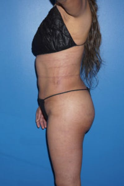 Liposuction Gallery - Patient 5227146 - Image 4