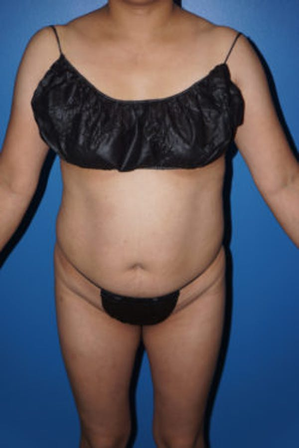 Liposuction Gallery - Patient 5227146 - Image 5