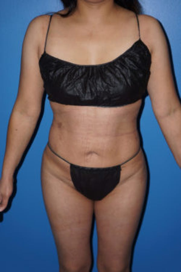 Liposuction Gallery - Patient 5227146 - Image 6