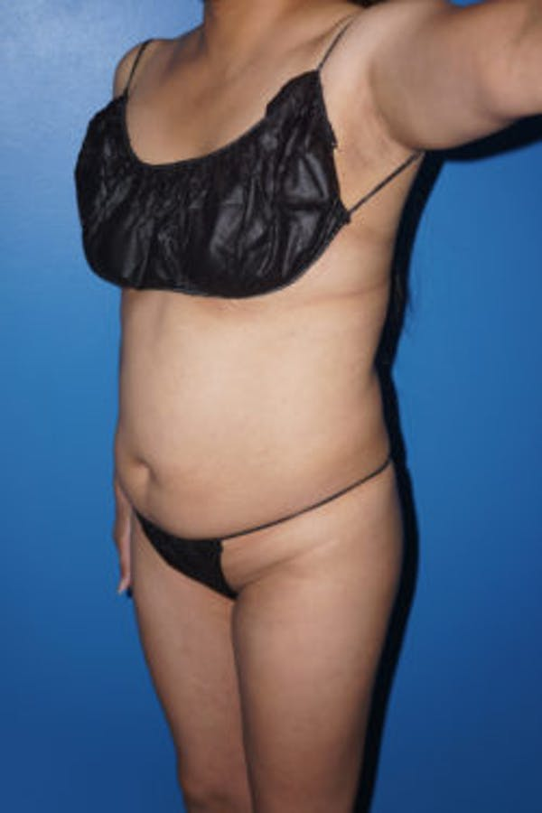 Liposuction Gallery - Patient 5227146 - Image 7