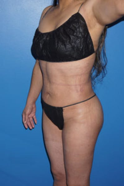 Liposuction Gallery - Patient 5227146 - Image 8