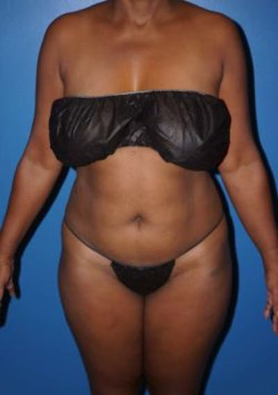 Liposuction Gallery - Patient 5227153 - Image 16