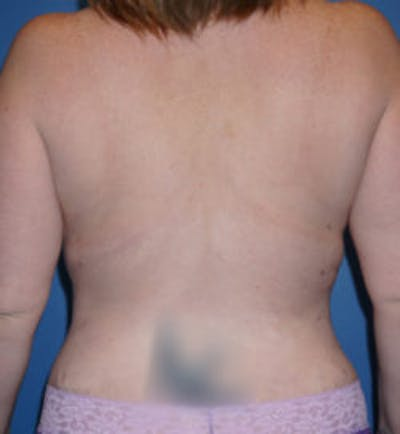 Liposuction Gallery - Patient 5227162 - Image 2