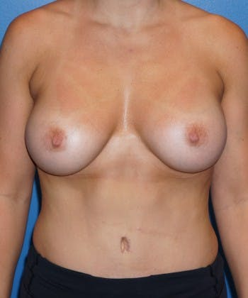 Liposuction Gallery - Patient 5227164 - Image 2