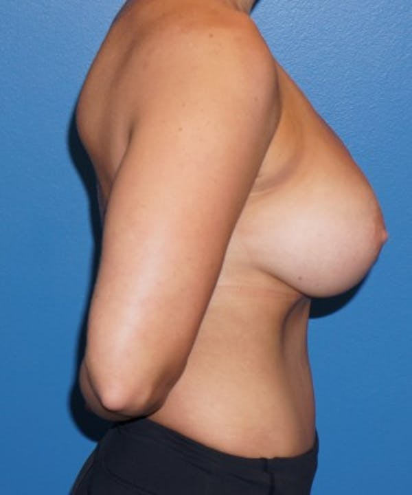 Liposuction Gallery - Patient 5227164 - Image 4