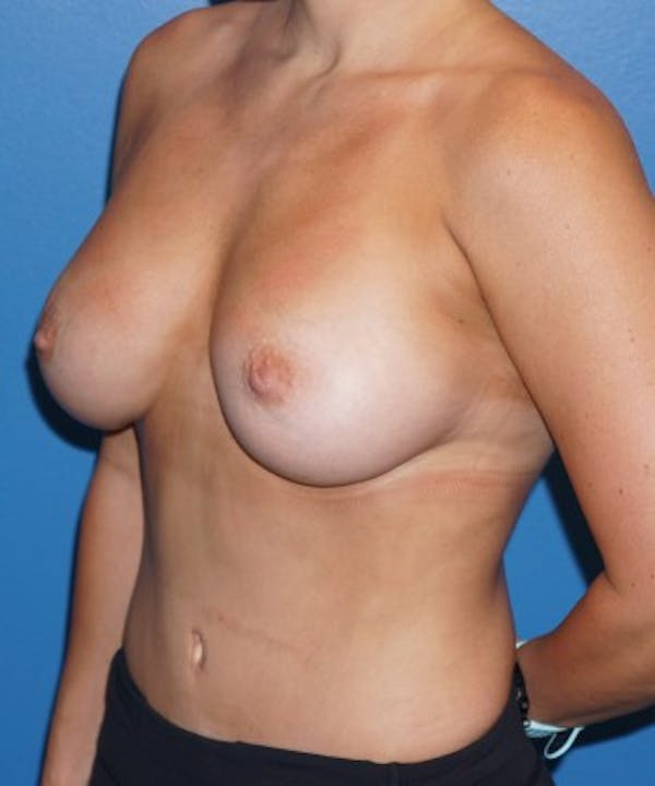 Liposuction Gallery - Patient 5227164 - Image 6